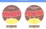 Чем отличается сахарный диабет первого и второго типа?