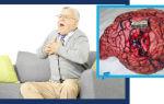 Отрыжка и икота при панкреатите