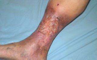 Фото высыпания на коже при диабете и средства для его лечения