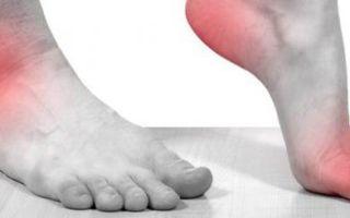 Ангиопатия ног при сахарном диабете и как ее лечить (с фото симптомов)