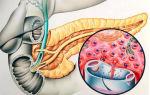 Употребление сельдерея при панкреатите: правила и нормы приема