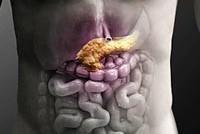 Стадии воспаления поджелудочной железы