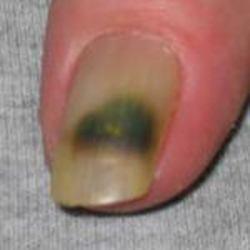 Изменения ногтей при сахарном диабете
