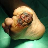 Гангрена (некроз) ног при диабете симптомы и лечение
