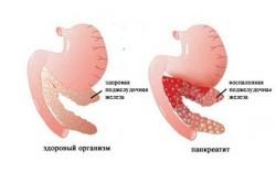 Слива при остром и хроническом панкреатите