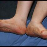 При сахарном диабете болят ноги что делать