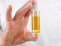 Лактоза при диабете: польза или вред? Лактоацидоз как осложнение диабета