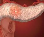Инсулинома: как проявляется, чем опасна? Методы купирования приступов гипогликемии. Инсулинотерапия, как метод лечения шизофрении