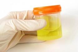 Чем опасен несахарный диабет: возможные последствия патологии