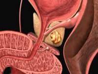 Глюкофаж при сахарном диабете