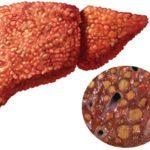 Заболевание печени при сахарном диабете