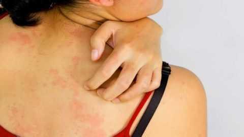 Аллергия на инсулин: возможна ли реакция и в чем причина