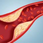 Поражение сосудов при сахарном диабете 2 типа