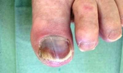 Диабетические язвы на ногах как выглядят, лечение