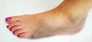 Гангрена ноги начальная стадия при сахарном диабете, признаки
